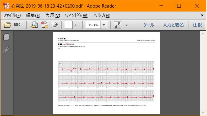 波形のPDF表示