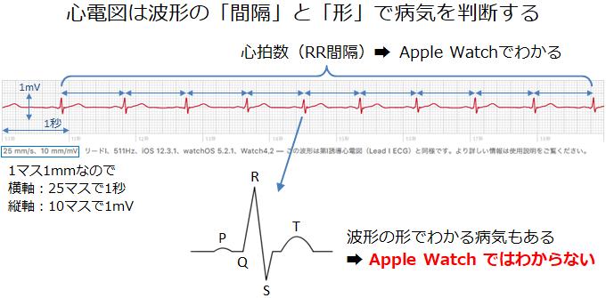 波形のチェックポイント