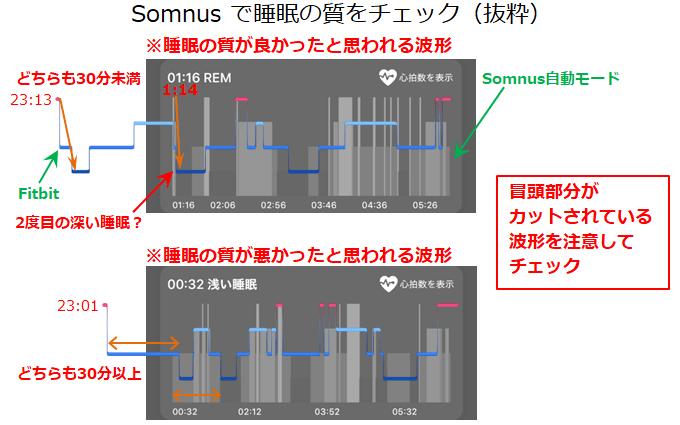 Somnusの睡眠サイクル