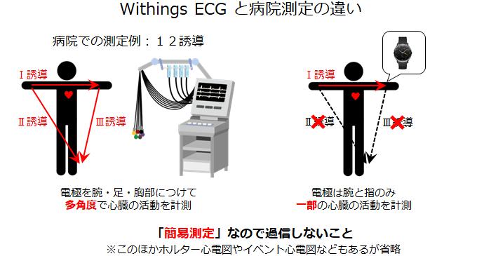 心電図測定法比較
