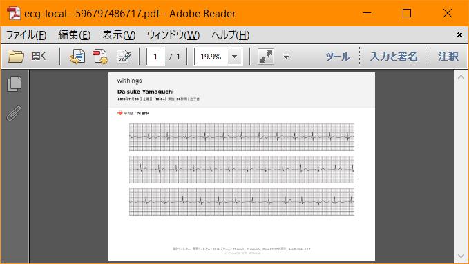 心電図PDFイメージ