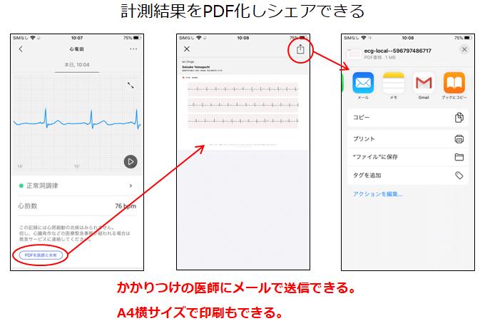 心電図PDFシェア方法