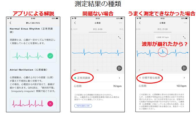測定結果アプリ表示