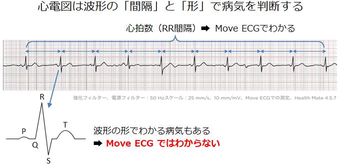 心電図波形で診断
