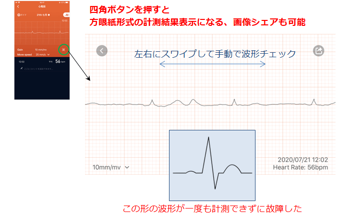 心電図の横画面と方眼紙表示、シェア機能