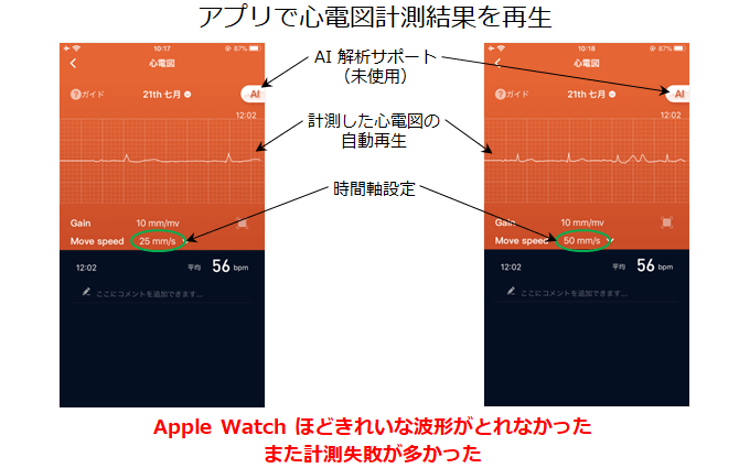 アプリで心電図計測結果を再生