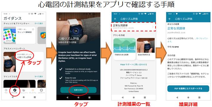 Fitbitスマホアプリで心電図をチェックする手順