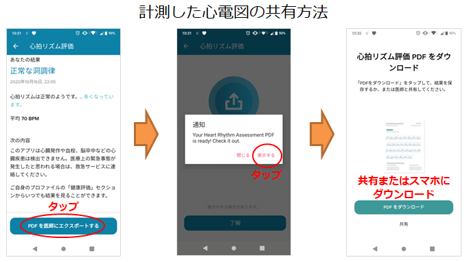 Fitbit心電図PDFの共有手順