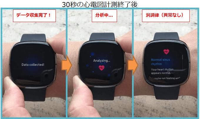Fitbit ECGアプリの計測完了後の写真