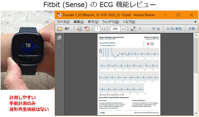 Apple Watch 心電図アプリの概要
