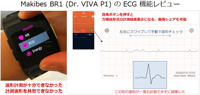 Makibes BR1 (Dr. Viva P1) 心電図アプリの概要