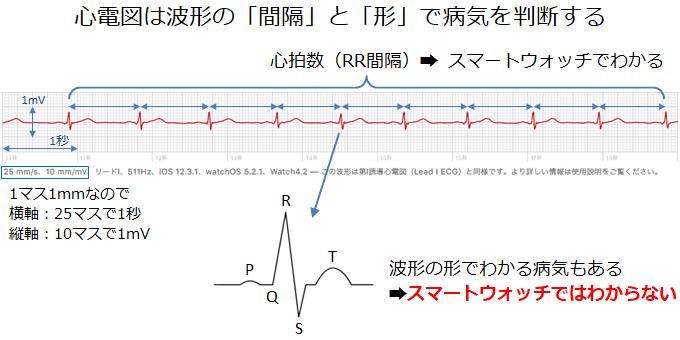 スマートウォッチの心電図からわかることとわからないこと