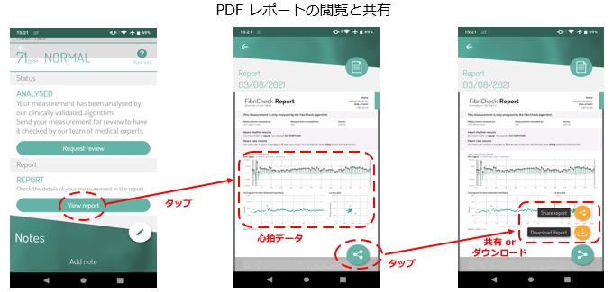 脈拍チェックのPDFレポートの生成